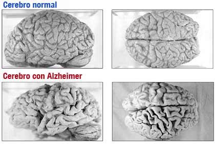 Cerebro normal y con Alzheimer